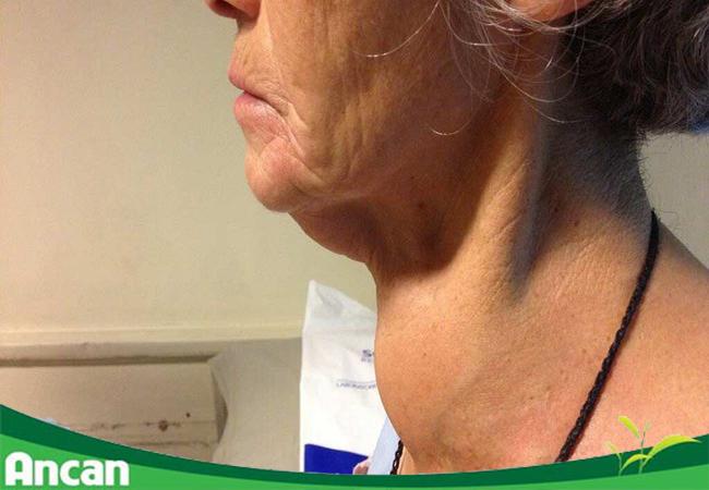 Bệnh Bướu cổ: Nguyên nhân, triệu chứng & cách điều trị