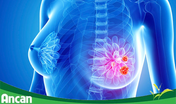 U xơ tuyến vú: Nguyên nhân, triệu chứng và cách điều trị