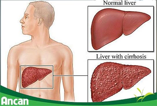 Điều trị ung thư gan giai đoạn đầu cần lưu ý những gì?