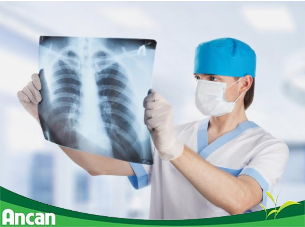 Chữa ung thư phổi ở đâu tốt - tư vấn từ chuyên gia