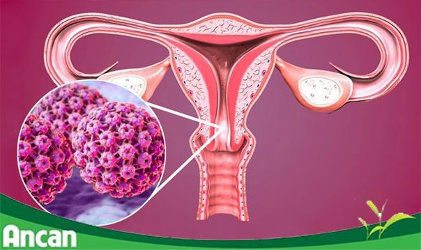 [Góc Tư Vấn] Ung thư cổ tử cung có chữa khỏi không?