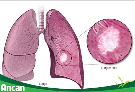 Thuốc chữa ung thư phổi nào hiệu quả nhất hiện nay
