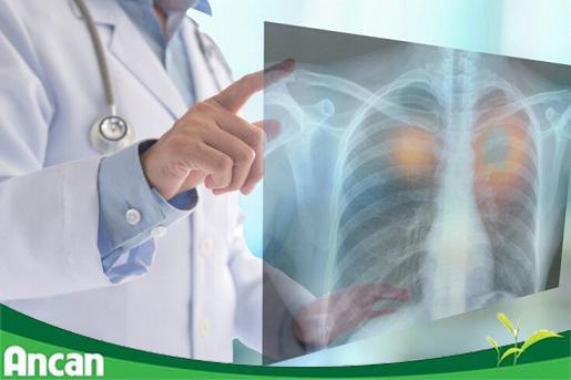 Ung thư phổi giai đoạn đầu có chữa được không?