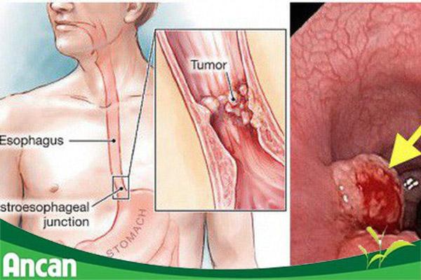 Chữa ung thư thực quản theo từng giai đoạn như thế nào?