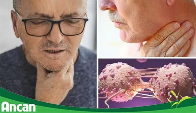 [Giải đáp] Ung thư vòm họng chữa được không?