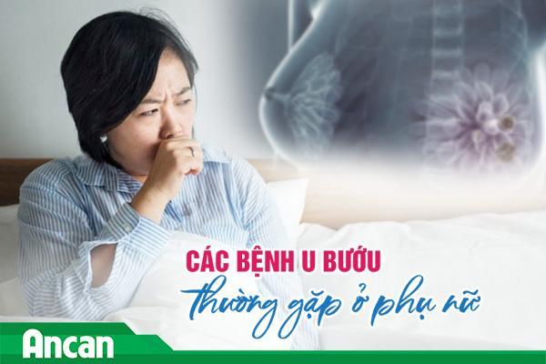 Các bệnh u bướu thường gặp ở phụ nữ