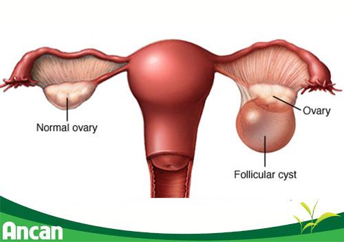 Dấu hiệu nhận biết u nang buồng trứng