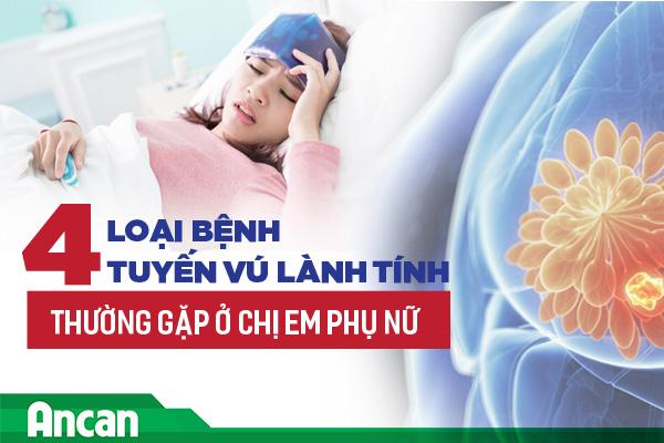 4 loại bệnh tuyến vú lành tính thường gặp ở chị em phụ nữ