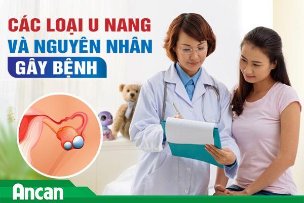 Các loại u nang và nguyên nhân gây bệnh