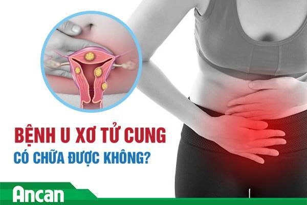 Bệnh u xơ tử cung có chữa được không?