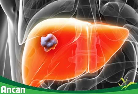 Ung thư gan - nguyên nhân, triệu chứng và cách điều trị